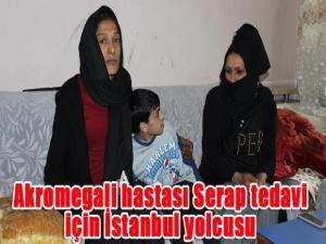 Akromegali hastası Serap tedavi için İstanbul yolcusu