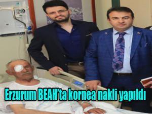 Erzurum BEAH'ta kornea nakli yapıldı